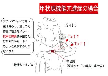 甲状腺機能亢進症.png