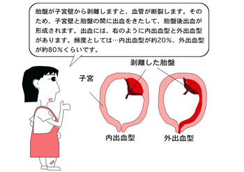 胎盤剥離.png