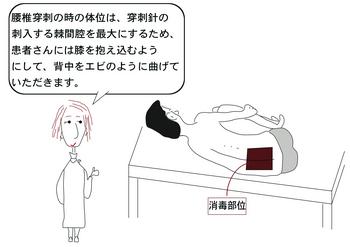 腰椎穿刺.png