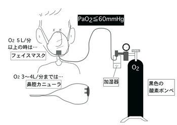 酸素ボンベ.png